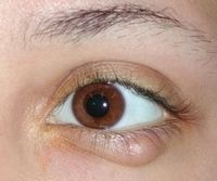 Лечение заболеваний глаз в перми thumbnail
